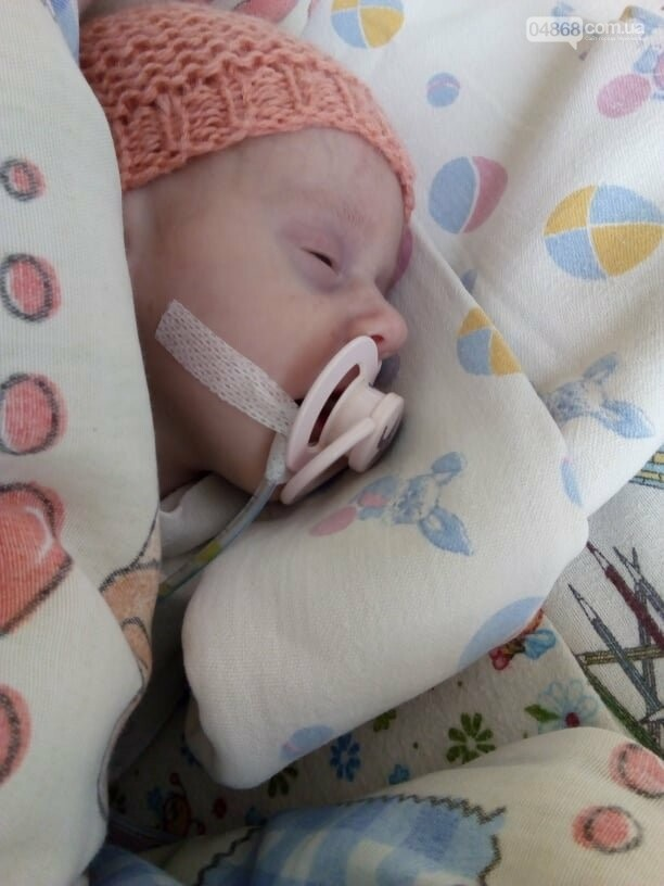 Крик о помощи: новорожденная София из Черноморска перенесла 2-ю операцию, фото-2
